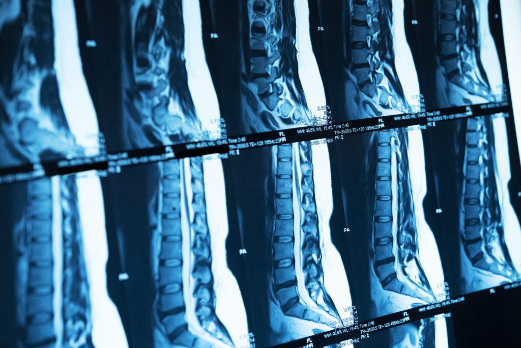 Hampstead Chiropractic Xray and MRI